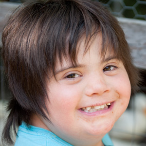 Closeup portrait of young girl with Down Syndrome